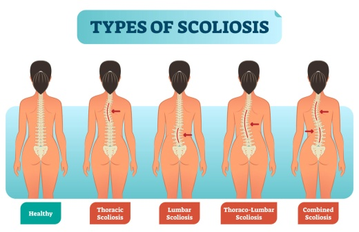 3952-scoliosis_types_100585862_ml